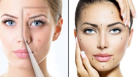 تعرفوا إلى المناطق التي تظهر فيها البثورعلى الوجه ودلالاتها الصحية